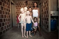 albino black family