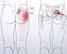 """Trigger Points-- """"In other words, say a student has pain somewhere. As they start to practice, the pain goes away. After they """"cool off"""" the pain returns. This is a good indication that it's a muscular problem. Of course, go confirm this with a medical professional!"""""""