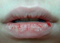 Severe chapped lips give us much pain and make lips ugly. We should use natural remedies in severe chapped lips treatment. It frees us from chapped lips. Cure For Chapped Lips, Chapped Lips Treatment, Sore Lips, How To Moisturize Lips, Natural Home Remedies, Natural Healing, Herbal Remedies, Health Remedies, Mouth Sores