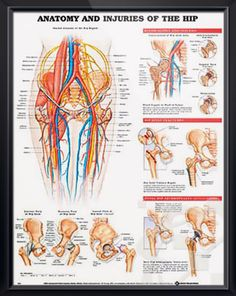Anatomy and Injuries of the Hip poster illustrates general hip anatomy including bones, muscles, arteries, veins and nerves. Skeletal system for doctors and nurses.