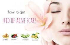 How to get rid of Acne Scars Fast Cystic Acne Remedies, Natural Acne Remedies, Skin Care Remedies, Baby Acne, Acne Scar Removal, Remove Acne, Hormonal Acne, How To Get Rid Of Acne, Top