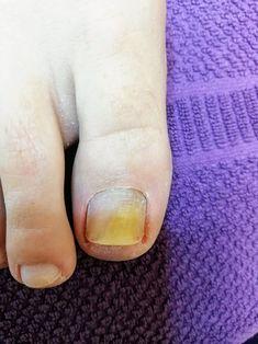 Abheilung Nagelpilz nach IPL Lichttherapie. InnStyle Kosmetikstudio Altheim. Weitere Information auf der Webseite. Nails, Beauty, Light Therapy, Nail Fungus, Collages, Sensitive Skin, Website, Finger Nails, Ongles