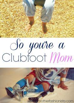 So you're a Clubfoot mom / Eres mama de niño con pie equino varo