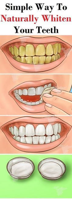 Everybody wants to have pearly white teeth, just like the people we see in the magazines. There are few ways you can whiten the teeth. The more expensive way is if you go to the dentist, or buy som…