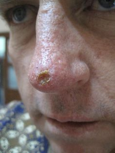 Black Salve Basal Cell Carcinoma Skin Cancer Nose