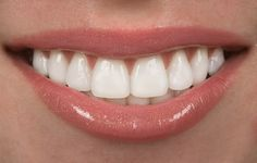 Get A Beautiful Smile With Porcelain Veneers