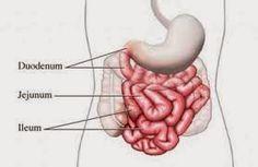 Cara mengobati penyakit radang infeksi usus secara alami aman tanpa efek samping