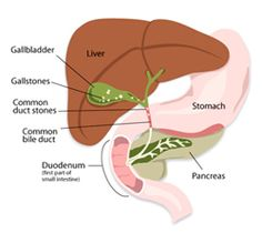 Liver Cleansing Diet.  The liver is your body's main detoxifying engine. Its job is to rid our bodies of the toxins we are all exposed to daily. If you care for your liver with a #liver #cleanse diet and liver cleanse supplements, it will work wonders to keep you healthy.