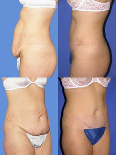 Tummy Tuck - Abdominoplasty Before and After Photo - Plastic Surgery Tummy Tuck Before After, Before And After Diet, Tummy Tuck Surgery, Summer Legs, Mommy Makeover, Cosmetic Procedures, Loose Skin, Tummy Tucks, Medical Problems