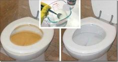Simple Homemade Trick For A Clean And Spotless Toilet In Less Than 2 Minutes! House Cleaning Tips, Cleaning Hacks, Natural Cleaners, Toilet Cleaning, Cleaners Homemade, Hygiene, Clean House, Helpful Hints, Told You So
