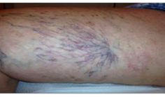 Many people especially women suffer from varicose veins and now we will teach you how to treat them easily and naturally.The varicose vein consists of a venous insufficiency consisting of the inflammation of the veins … Varicose Vein Remedy, Varicose Veins, Health Remedies, Home Remedies, Natural Remedies, Tummy Tuck Surgery, Rheumatoid Arthritis Treatment, Urinary Incontinence, Home Treatment