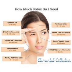 Botox Cost, Botox Brow Lift, Eyebrow Lift, Botox Injection Sites, Botox Injections, Filler Injection, Botox Before And After, Botox Cosmetic, Botulinum Toxin