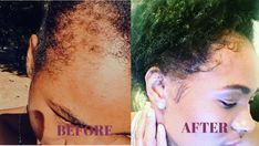 How To Regrow Your Edges When Your Hairline Is On STRUGGLE! - Natural Black Hair Care Kinky Curly