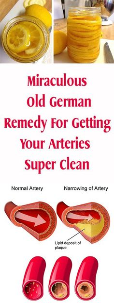 Miraculous Old German Remedy For Getting Your Arteries Super Clean #fitness #beauty #hair #workout #health #diy #skin #Pore #skincare #skintags #skintagremover #facemask #DIY #workout #womenproblems #haircare #teethcare #homerecipe