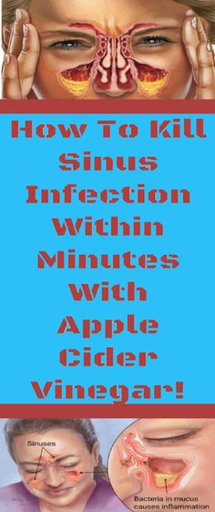 How to Start Killing A Sinus Infection In Minutes with Apple Cider Vinegar