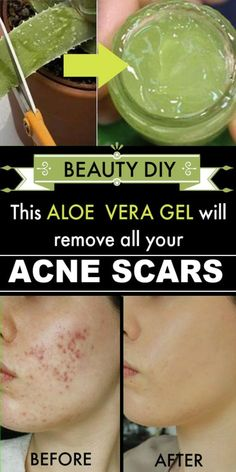 Acne Scar Treatment with Aloe Vera Gel Beauty DIY: Akne-Narben-Behandlung mit Aloe Vera Gel # Hautpf Scar Treatment, Best Acne Treatment, Acne Treatments, Overnight Acne Treatment, Cystic Acne Treatment, Aloe Vera Piel, Maquillage On Fleek, Acne Marks, Acne Scar Removal