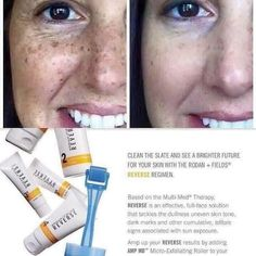 Rodan + Fields REVERSE Regimen is for the appearance of brown spots, dullness and discoloration. Clean the slate and see a brighter future for your skin. NOW R+F has two REVERSE Regimen options...REVERSE Brightening for dullness and uneven skin tone...and...REVERSE Lightening for dark marks and discoloration. Message me! mklecroy.myrandf.com