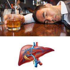 Intoxicación Por Alcohol: Síntomas, Causas Y Tratamiento - https://www.sorihe.com/blog/intoxicacion-por-alcohol-sintomas-causas-y-tratamiento/