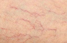 Você tem as incômodas aranhas em sua pernas? São antiestéticas e doem. Te daremos simples remédios para minimizar a sua incidência. Descubra!