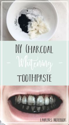 Hello everyone! Welcome to another Friday DIY! Teeth whitening is something I've always struggled with. I'm not into using a ton of chemicals on my teeth, and I also haven't been …