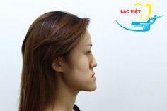 Hô hàm dưới là một chứng rối loạn về cấu trúc xương hàm