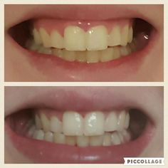 More happy customers loving their toothpaste. This lady had only been using hers THREE days and got these results. DM for more info #lulobeauty #beauty #cosmetics #makeup #teeth #teethwhitening #smile #lipgloss #cheshire #manchester #whitesmile #whiteteeth #happy #products by lulobeauty Our Teeth Whitening Page: http://www.myimagedental.com/services/cosmetic-dentistry/teeth-whitening/ Other Cosmetic Dentistry services we offer: http://www.myimagedental.com/services/cosmetic-dentistry Google…