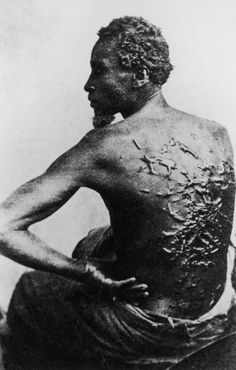 Rear view of former slave revealing scars on his back from savage whipping, in photo taken after he escaped to become Union soldier during Civil War. Life magazine, 1863.