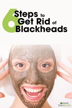 6 Ways to Banish Blackheads From Your Skin
