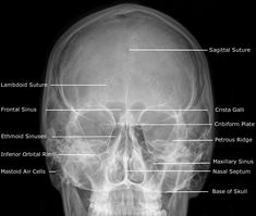 Dentistry lectures for MFDS/MJDF/NBDE/ORE: Radiographic Anatomy of Facial Bones and Mandible with Radiological Abnormalities of the Skull and Facial Bones Radiology Schools, Radiology Student, Anatomy Head, Foot Anatomy, Skull Anatomy, Greys Anatomy, Medical Radiography, Radiologic Technology, Facial Bones