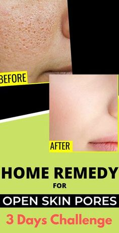 Open or large pores are one of the main reasons for acne or pimples. In this article, I will share some natural remedies to minimize pores on the face. Beauty Care, Beauty Skin, Beauty Hacks, Health And Beauty, Diy Beauty, Homemade Beauty, Beauty Ideas, Face Beauty, Beauty Guide