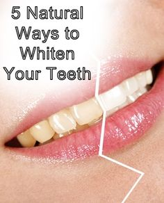 5 Natural ways to whiten your teeth! I love these options :)...