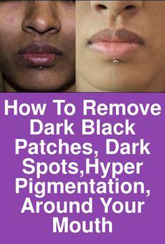 How To Remove Dark Black patches, Dark Spots,Hyper pigmentation, Around Your Mouth Dark Skin Around Mouth, Darkness Around Mouth, Black Patches On Face, Black Spots On Face, Dark Spots Under Armpits, Dark Spots On Skin, Black Skin Care, Dark Lips, How To Remove