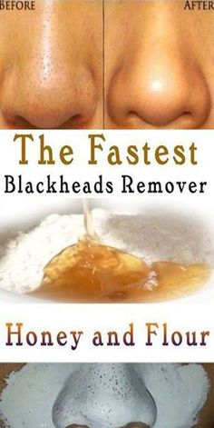 Jul 2019 - 12 Best Home Remedies For Blackheads how to remove blackheads naturally how to remove blackheads on nose how to remove blackheads from nose permanently how t. Natural Home Remedies, Herbal Remedies, Health Remedies, Remove Blackheads From Nose, Remove Acne, Remove Stains, Mask For Blackheads, Deep Blackheads, Blackhead Remedies