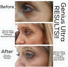 Arbonne Skincare. Genius Ultra results. Intensive renewal system. Before & after.  http://KrystalFrench.arbonne.com/