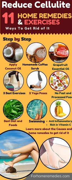 11 Tested Ways to Reduce Cellulite: Home Remedies Get Rid Cellulite. Poses Oils Oil Roller Scrub Food Oil to avoid Roller Cellulite Wrap, Causes Of Cellulite, Cellulite Scrub, Cellulite Exercises, Cellulite Remedies, Reduce Cellulite, Anti Cellulite, Thigh Cellulite, Anti Inflammatory Recipes