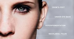 Crow's feet, under-eye bags, #hyperpigmentation, oh my! How to stop the first signs of aging in their tracks.