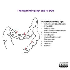 Thumbprinting is a radiological sign of large bowel fold thickening, usually caused by edematous change, related to an infective or inflammatory process (colitis) or due to mucosal/submucosal hemorrhage. Diverticulitis, Free Text, How To Become, Signs, Medical Illustrations, Signage