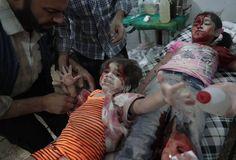 Imagen del fotógrafo Abd Doumany, de la agencia France Presse (AFP), ganadora del segundo premio de la categoría 'Noticias de Actualidad'. En la foto, una niña siria heridas es atendida en un hospital tras un bombardeo en la ciudad de Duma.