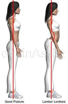 Lumbar Lordosis or Lumbar Swayback: 5 Simple Corrective Exercises, Tips For Prevention L: anterior pelvic tilt Fitness Workouts, Sport Fitness, Fitness Tips, Fitness Motivation, Health Fitness, Fitness Style, Fitness Outfits, Cardio Workouts, Fitness Logo