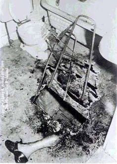 Gallery of Human Mysteries and Anomalies: Spontaneous Human Combustion - Dr. John Irving Bentley