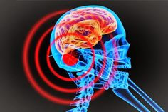 [ Pinterest: @ndeyepins ] La santé pour tous : TÉLÉPHONE PORTABLE : AUGMENTATION DE 290% DU RISQUE DE TUMEUR CÉRÉBRALE 😮