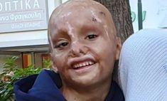 Έκκληση για βοήθεια: Ο 6χρονος Ιωάννης έχασε τα άνω άκρα του όταν πήρε φωτιά το σπίτι του και μας χρειάζεται - ΑμεΑ Care Carnival, Face, Painting, Carnavals, Painting Art, The Face, Paintings, Faces, Painted Canvas