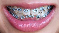 Coastal Orthodontic Care, Dr. Adam G. Lautt, 805-650-1080, www.facebook.com/... 1730 S. Victoria Ave., Suite 250, Ventura, CA 93003