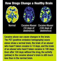 Brain Activity and Cocaine Abstinance Healthy Brain, Healthy Mind, Detox Symptoms, Alcohol Is A Drug, Addiction Help, Brain Activities, Drug Free, Radiology, Circuit Workouts