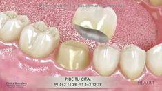 Prótesis dental fija - puentes, coronas y carillas.
