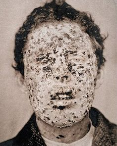 The Burns Archive-Historical Medical Photos This is why we vaccinate. SMALLPOX NY CITY EPIDEMIC, 1881 Victims of the smallpox epidemic in More people died from smallpox than any other disease in history. Old Photos, Vintage Photos, The Babadook, Horror, Foto Art, Medical History, No Photoshop, Interesting History, World History