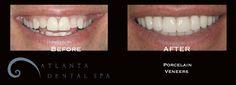 Before and After Smile Makeover with Porcelain Veneers by Dr. Susan Estep at Atlanta Dental Spa