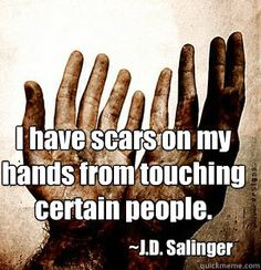 Image result for my scars meme