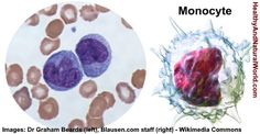 High or Low Monocytes in Blood Test – What Does It Mean?