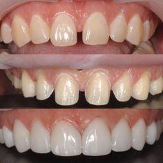 Veneers Teeth, Dental Veneers, Lente Dental, Invisalign, Smile Whitening, Dental Images, Dental Aesthetics, Dental Posters, Dental Anatomy